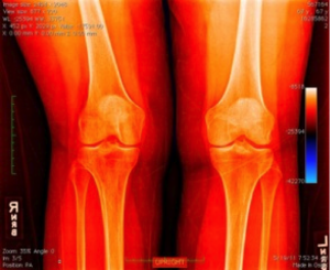 Knee cartilage for Regenerative medicine