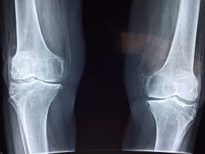 Knee x-ray illustrating knee cartilage growth after autologous adipose stem cell injection