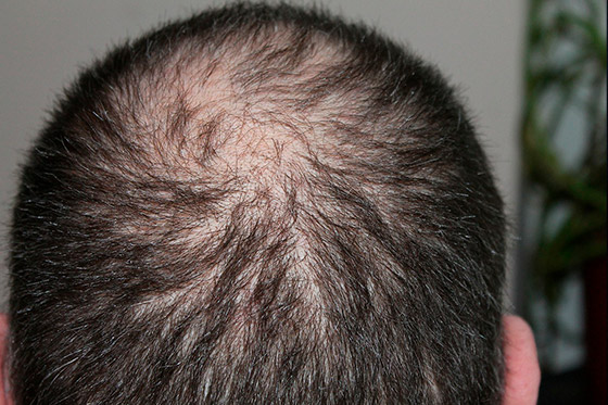 Hair Loss PRP therapy