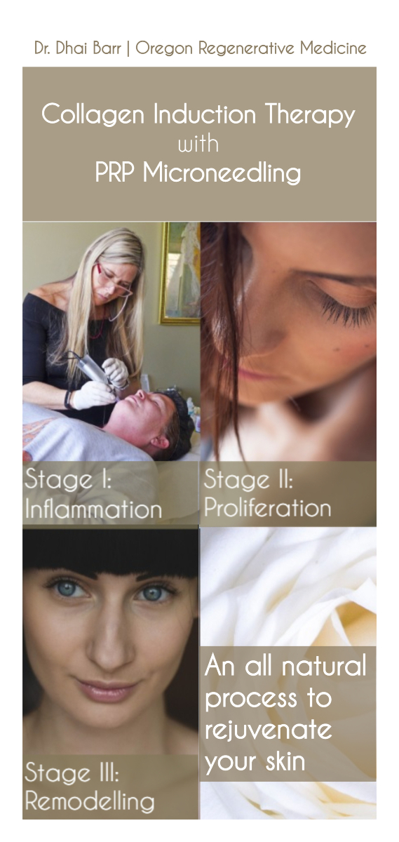CIT with PRP Microneedling, Skin Rejuvenation