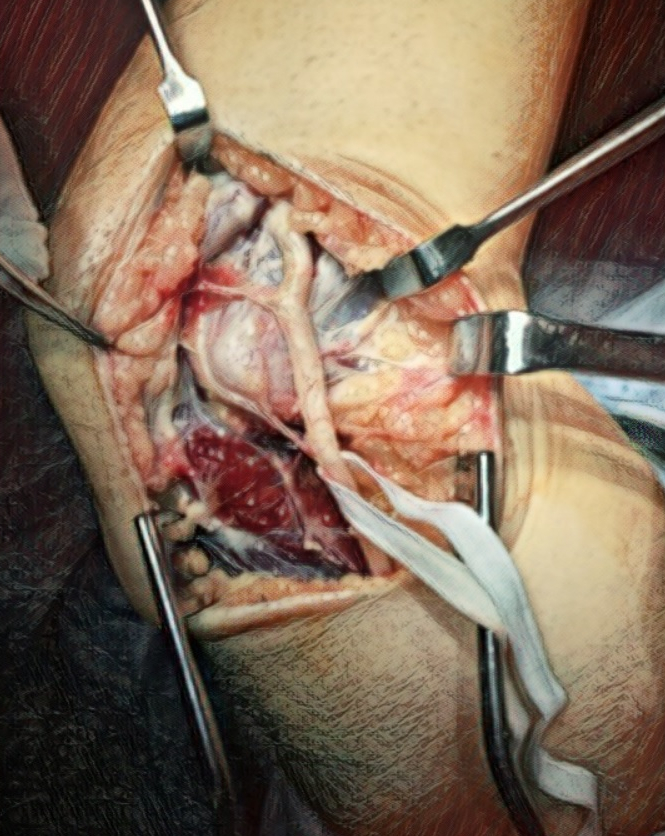 Ultrasound-guided nerve hydrodissection is far safer than surgery on an entrapped nerve
