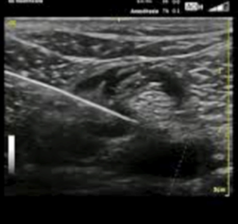 Ultrasound-guided nerve hydrodissection